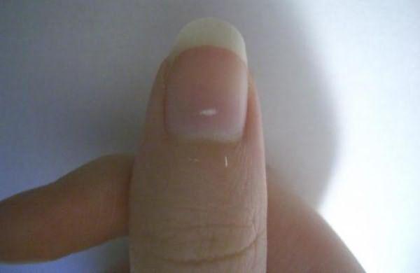 Белые пятна на пальцах рук что значит